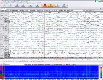 EEG mit Trend des Frequenzspektrums