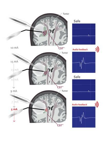 Mappingsauger Neurochirurgie