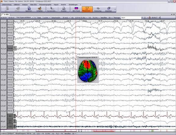 EEG - Aufzeichnung