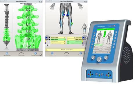 neuromonitoring spine
